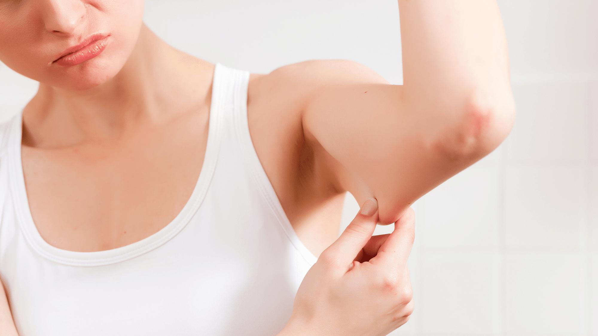 triceps upper arm fat